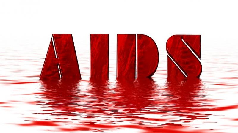 Nearing 40 million with HIV. (Photo: Pixabay)