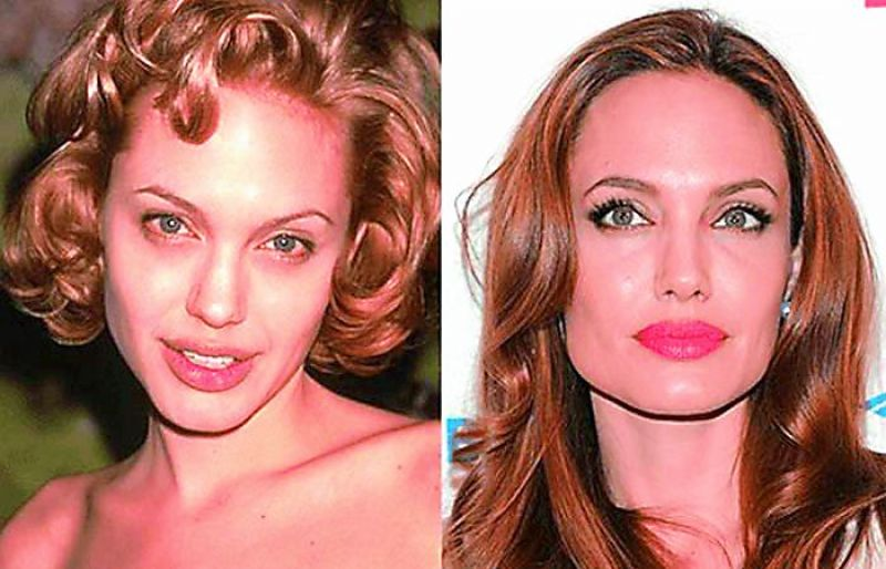 Angelina Jolie (before and after)
