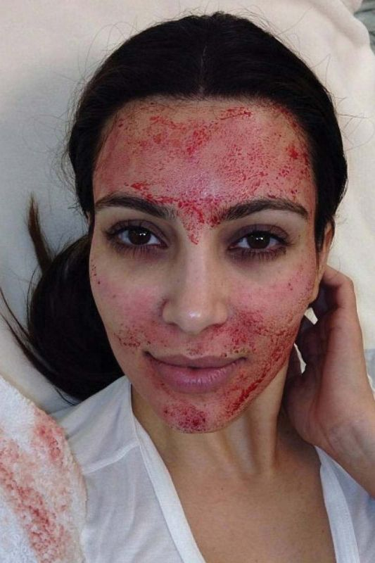 Kim Kardashian opted for the Vampire facelift to maintain youthful look; Kim soon after the procedure