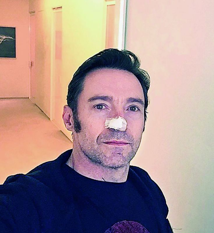 The photo that the actor posted online, after his surgery