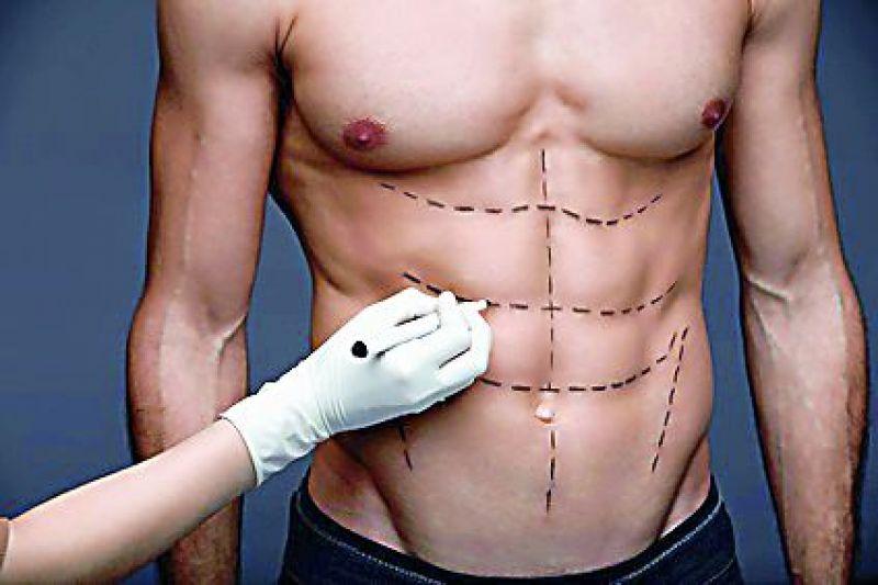 MUSCULAR Treatment