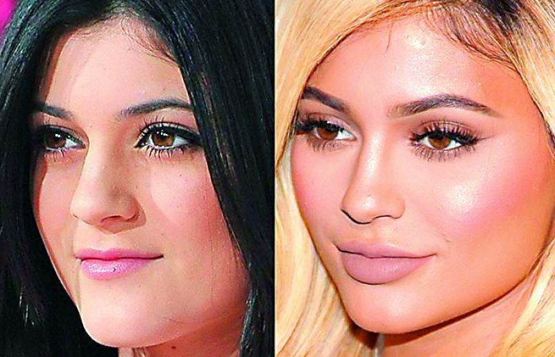 Kylie Jenner (before and after)