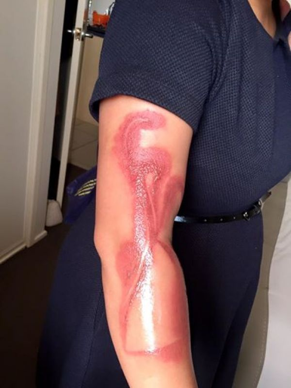 Apple's iPhone 7 has caused a pregnant woman in Australia second-degree burns on her right arm after falling asleep.