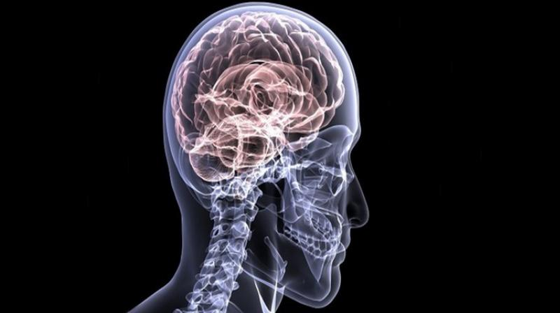 Researchers analysed a large set of known risk factors for Alzheimer's disease. (Photo: ANI)