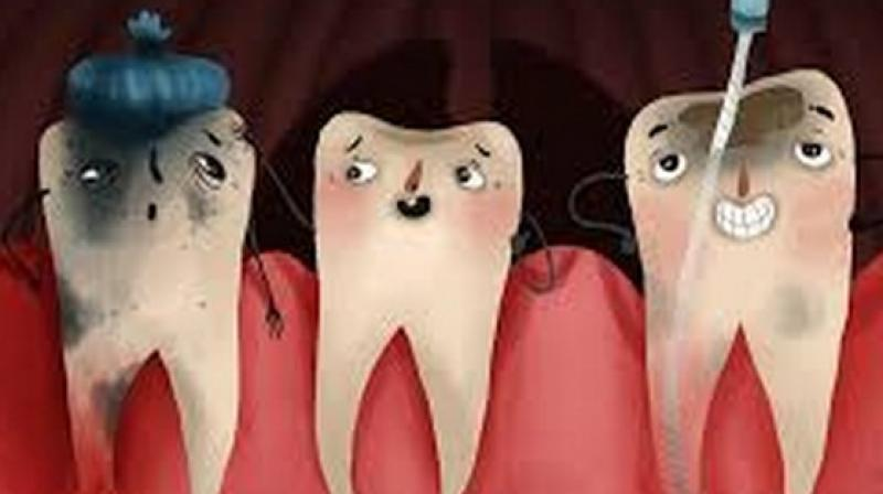 The effect of root canal work on patients' oral health-related quality of life was compared to other kinds of dental work such as tooth extraction, restoration of teeth, repairs to the teeth or gum treatment, preventative treatment and cleaning. (Photo: ANI)