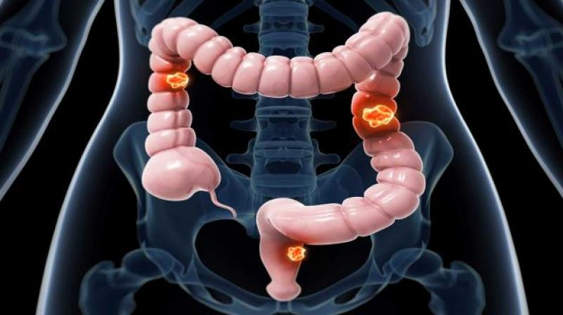 Image result for Colorectal Cancer