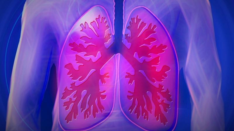Small cell lung cancer is one of the most aggressive types of cancer. (Photo:Representational/Pixabay)