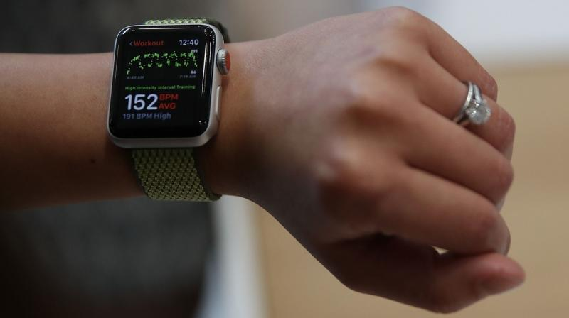 Heather bought the watch hoping to track her health (Photo: AFP)