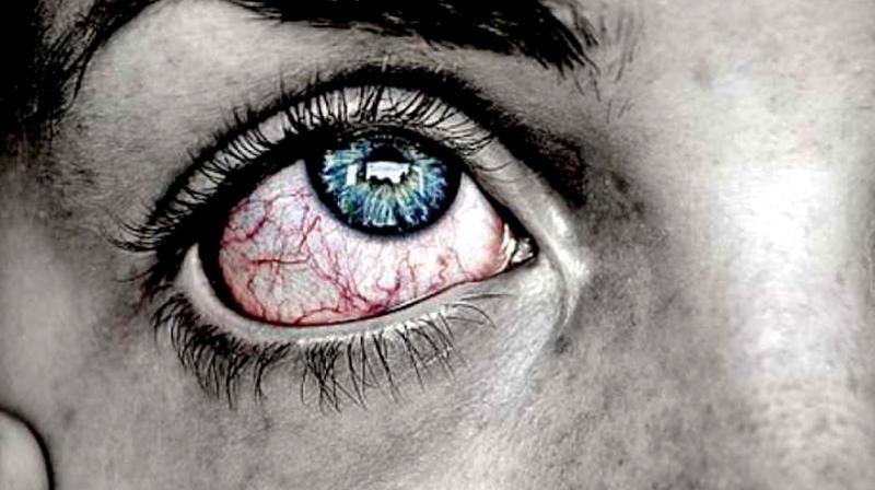 Doctors warn of dry eye syndrome, ahead of summer season