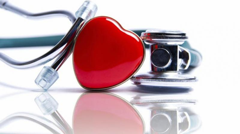Poor heart health linked to memory issues. (Photo: Pixabay)