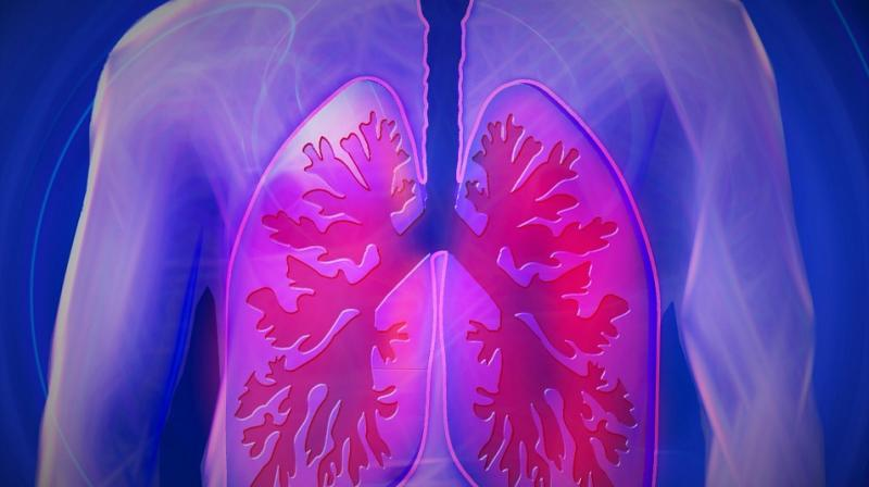 Man Dies After Coughing Up Lung's Bronchial Tree