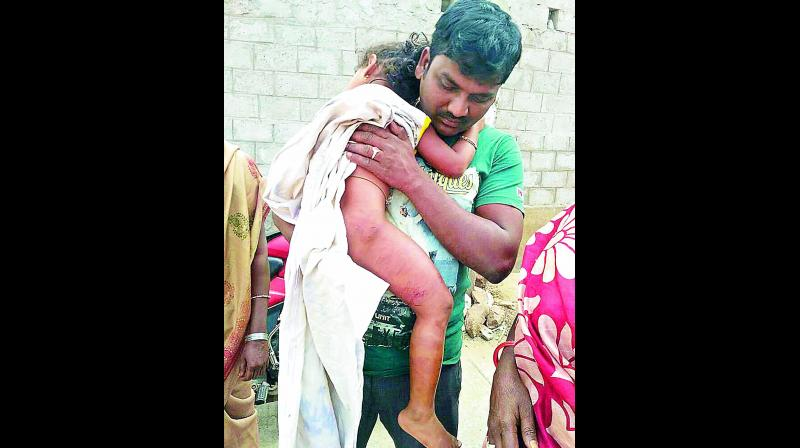 Kunchala Sravani, who was injured in a stray pig attack at Pedagantyada near Gajuwaka in Visakhapatnam on Tuesday.