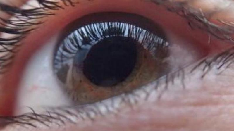 The lenses can be used by people suffering from ocular surface disease, corneal disease, and injury or damage to cornea. (Representational image)