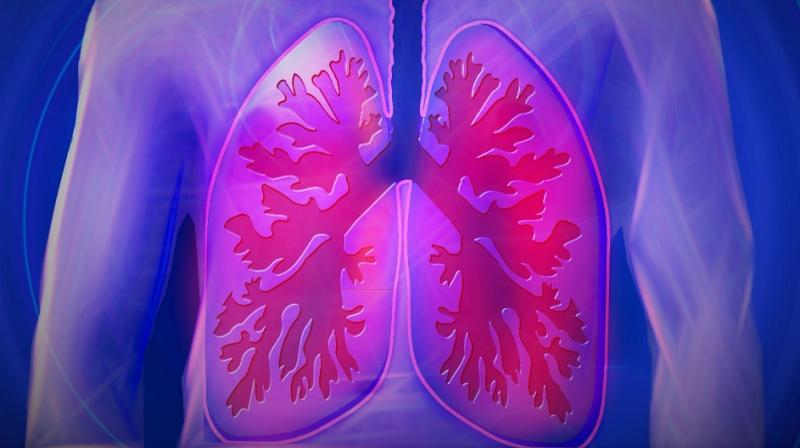 Lung cancer signs you need to be aware of. (Photo: Pixabay)