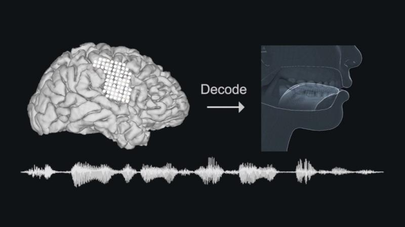Scientists at the University of California, San Francisco, implanted electrodes into the brains of volunteers and decoded signals in cerebral speech centres to guide a computer-simulated version of their vocal tract - lips, jaw, tongue and larynx - to generate speech through a synthesizer.