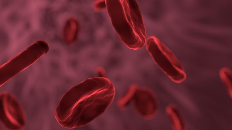 Facts about sickle cell disease. (Photo: Pixabay)