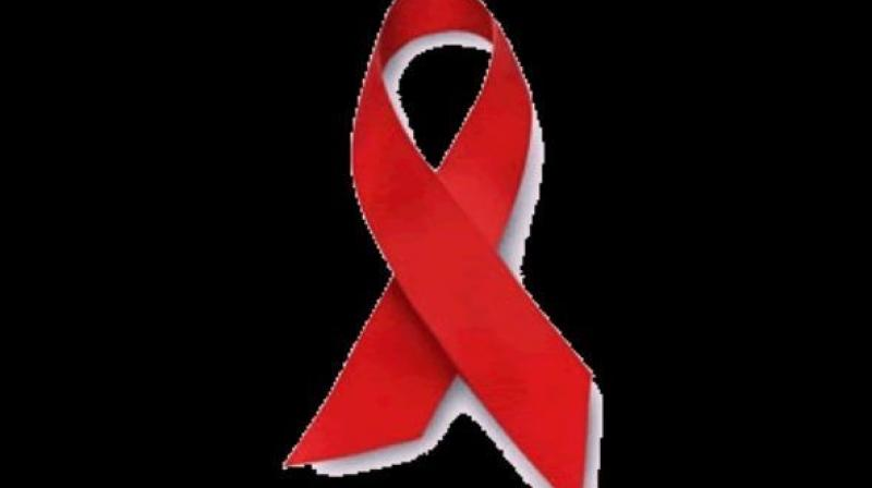 Russia, Ukraine, Belarus have highest rates of newly diagnosed HIV in Europe