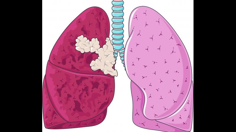 Nowadays, women are also getting diagnosed with the lung cancer. One of the main reason is passive smoking.