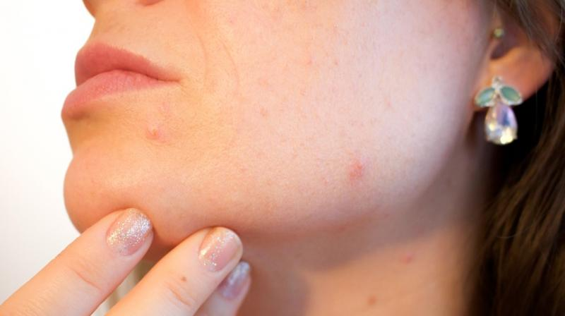 New vaccine could soon treat acne. (Photo: Pixabay)