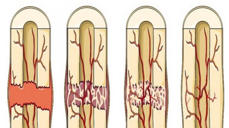 When you break a bone, your body sends signals through the bloodstream to recruit cells to fix it. (Photo: ANI)