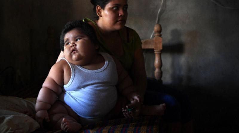Mexican Toddler With Rare Genetic Condition Weighs 28 Kilos Baffles Doctors