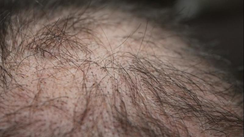 Japanese researchers develop novel method that may treat hair loss
