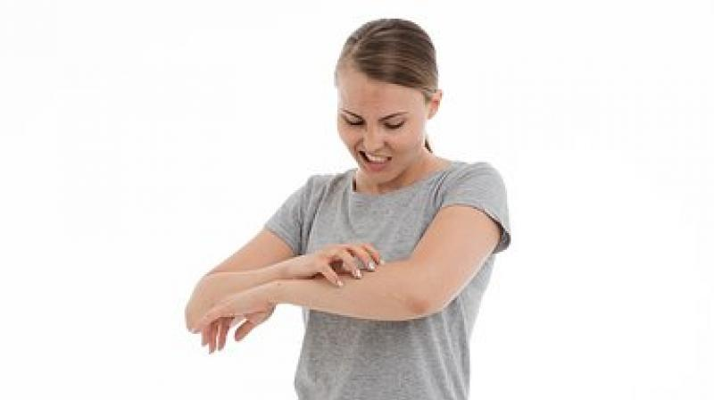 Scratching is a common concern, but get it checked if it persists. (Photo: Representational/Pixabay)