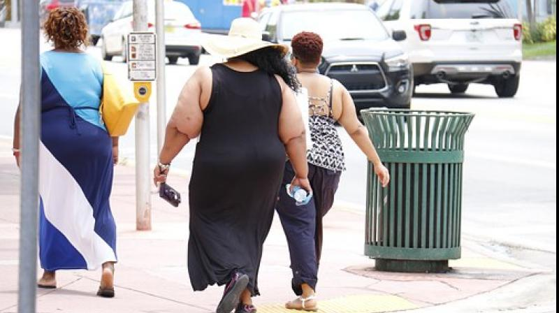 Obesity affects one in every three Americans. (Photo: Representational/Pixabay)