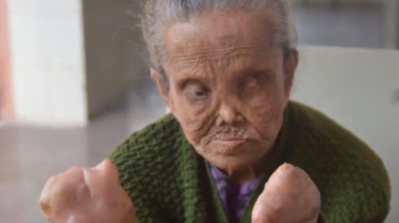 65-year-old Sajida Begum lost her fingers and toes (Photo: YouTube)