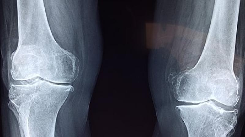 Five things you must consider before you opt for knee replacement
