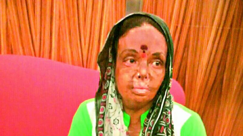 D. Pushpa who has been undergoing immense suffering since the fire accident.