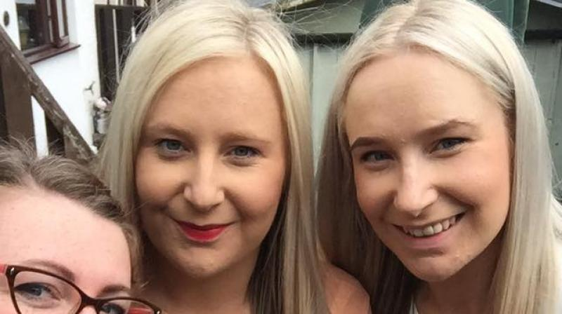 Zoe Buxton and Lucy Fretwell have one-in-two-million genetic condition. (Photo: Facebook / Lucy Fretwell)