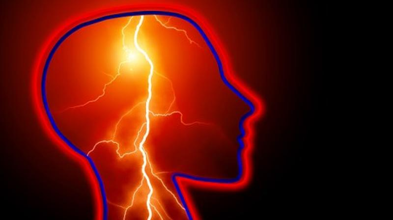 More than a third of people with epilepsy continued to have seizures despite treatment. (Photo: Pixabay)