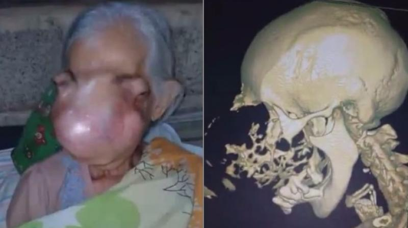 Doctors have recommended a facial reconstuction (Photo: YouTube)