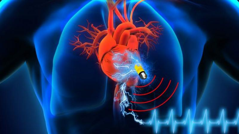"""Following this, the doctors were left with no choice but to implant a permanent pacemaker. """" There have only been three such prior surgeries. Considering this, the technical and surgical expertise about this procedure is very limited."""" says Dr. Deepa Hariharan."""