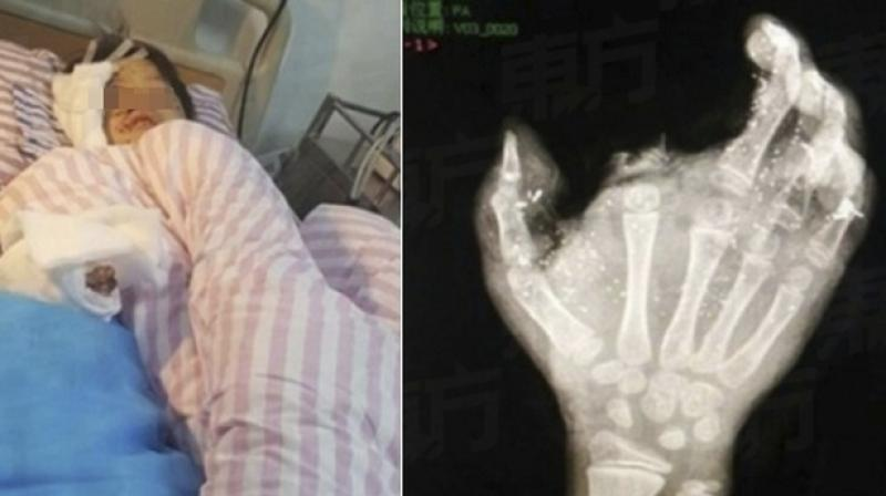 Meng Jisu from Guangxi province was charging the phone at home and when he leaned over the charger to reach for his phone, it exploded, blowing off his index finger immediately and left him unconscious.