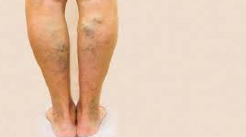 Sedentary youngsters falling prey to varicose veins