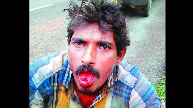 Ravi Kumar shows his injured tongue. (Photo: DC)