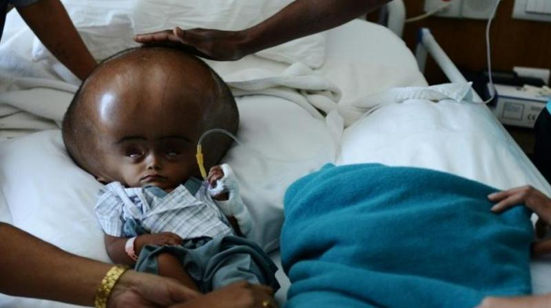 The five-year-old was born with hydrocephalus, a potentially fatal condition that causes cerebrospinal fluid to build up on the brain. (Photo: AFP)