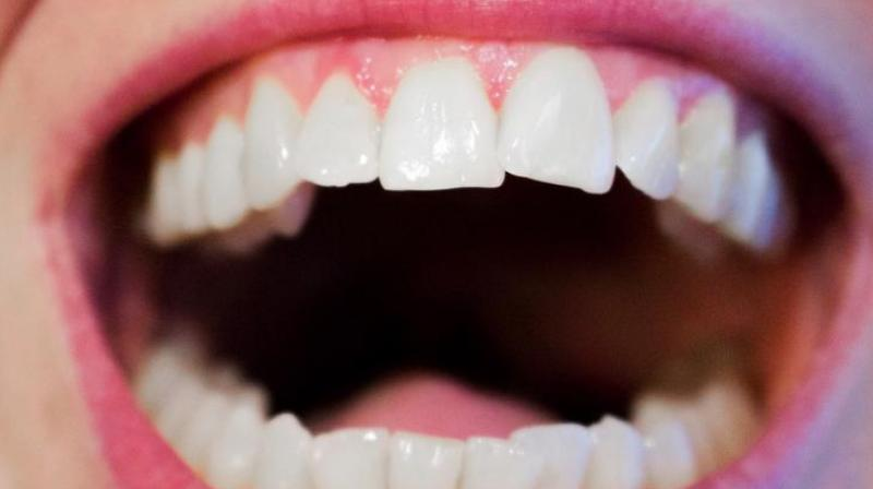 High concentrations of hydrogen peroxide can break down a tooth's enamel, causing sensitivity or cell death.