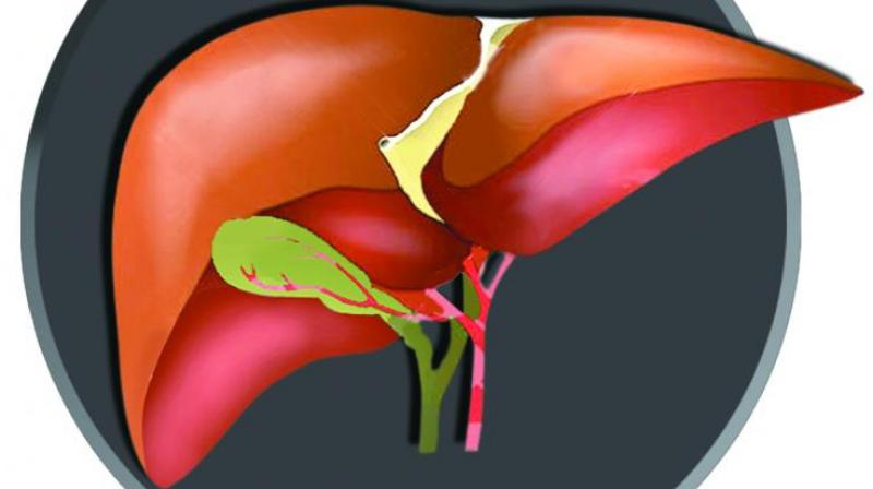 Fatty Liver Is A Serious Issue Do Not Ignore