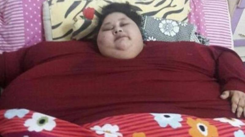 Eman weighed around 500 kg when she was brought to Mumbai's Saifee Hospital. (Photo: AFP)