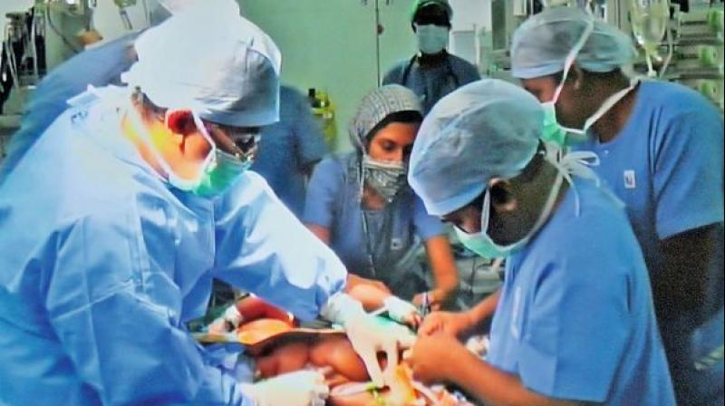 Rare surgery performed on intestinal cancer