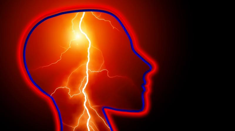 Scientists develop device that can stop epileptic seizures. (Photo: Pixabay)