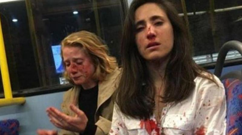 Melania Geymonat, 28, said she and her girlfriend Chris were left covered in blood after the attack last week. (Photo: Facebook/ Melania Geymonat)