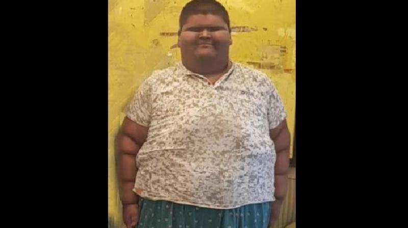 Mihir weighed 2.5 kg at birth in 2003. He first showed signs of obesity at the age of 5, weighing 60-70 kg, the hospital said. Mihir's family has a history of obesity, but the boy also had an uncontrolled diet and would consume a lot of junk food. (Photo: Facebook screengrab)