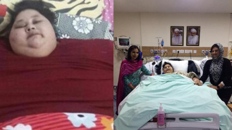 Worlds Heaviest Woman Eman Ahmed Loses A Mind-Boggling 120 Kilos In One Month-3255