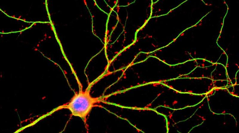 UCLA scientists discovered that dendrites (shown here in green) are not just passive conduits for electrical currents between neurons. (Image: UCLA)