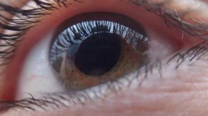 According to research conducted by the UK-based Newcastle University and published in famous journal Nature, the application of collagenase to cornea, softens the underlying tissue and allows for stem cells situated to repair damage. (Representional Image)