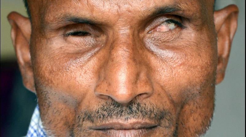 For some 250 visually impaired people living in the Mumbai locality of Vangani, the coronavirus pandemic has added darkness an already gloomy life. (DC PICTURE: Rajesh Jadhav)